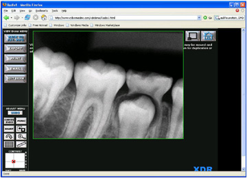 XDR-Imaging-Software